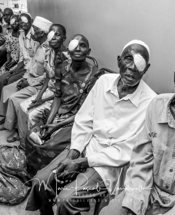 african people recovering from cataract surgery